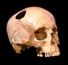 Agyműtét nyomai a koponyán