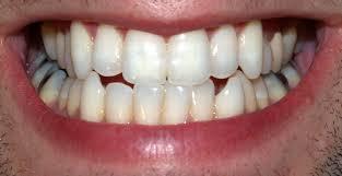 A fogpor egyre kedveltebb