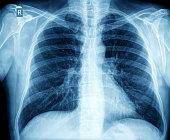 A TBC betegség, a tuberkulózis kezelése